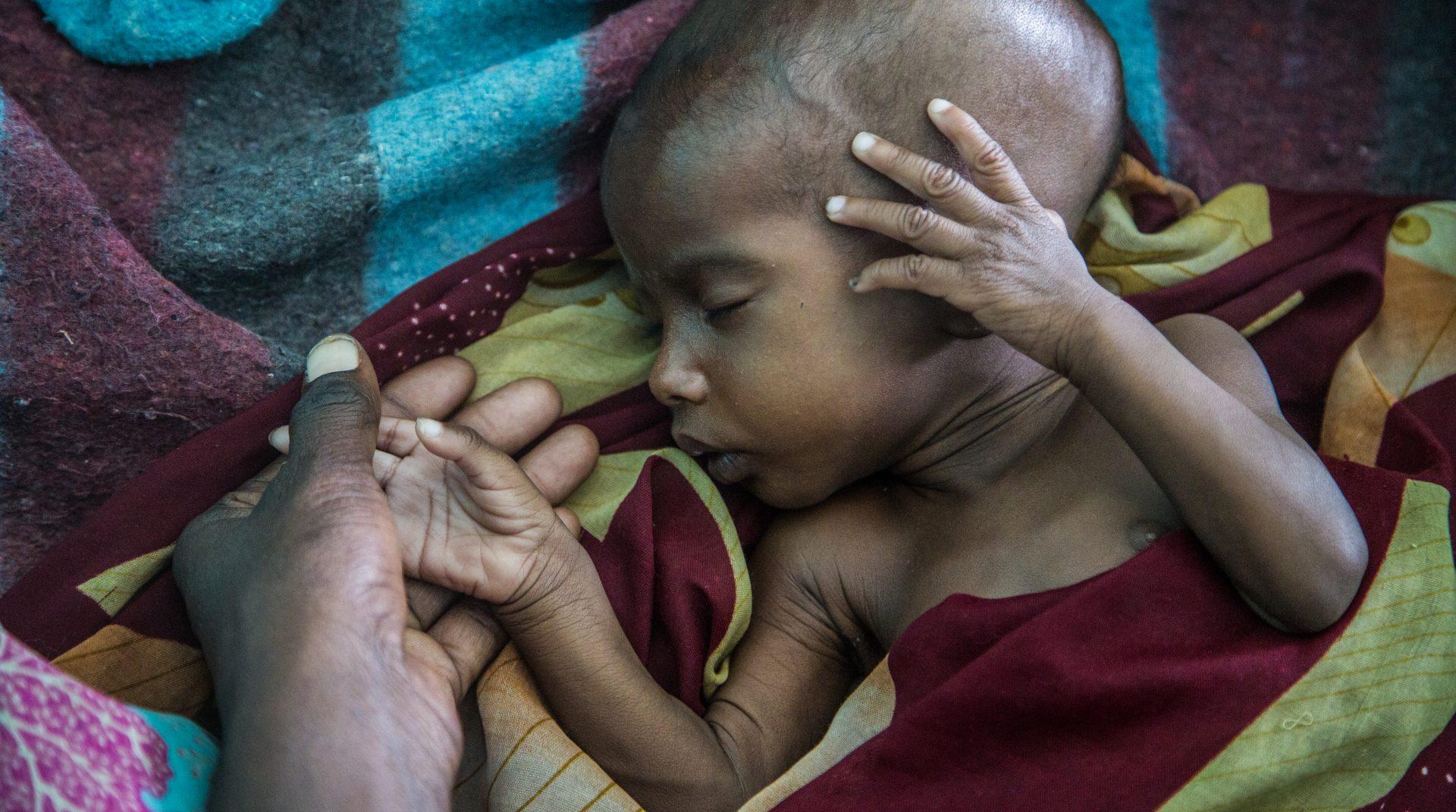 Underernæret barn, Diffa-regionen Niger